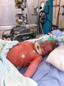 Freddie Pneumonia and Septicaemia
